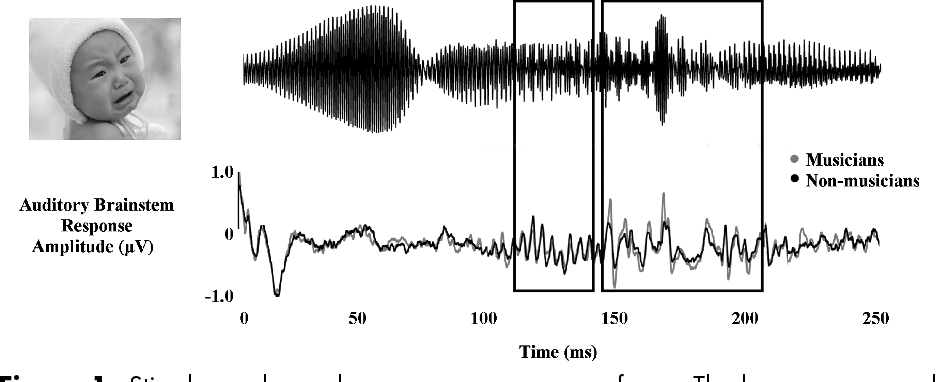 Figure 1. Stimulus and grand average response waveforms. The boxes correspond to the periodic and complex portions, respectively. Figures adapted from Strait et al.7 with permission. (In color in Annals online.)