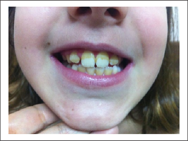 Figure 1 from Reversible Teeth Discoloration in Children: A