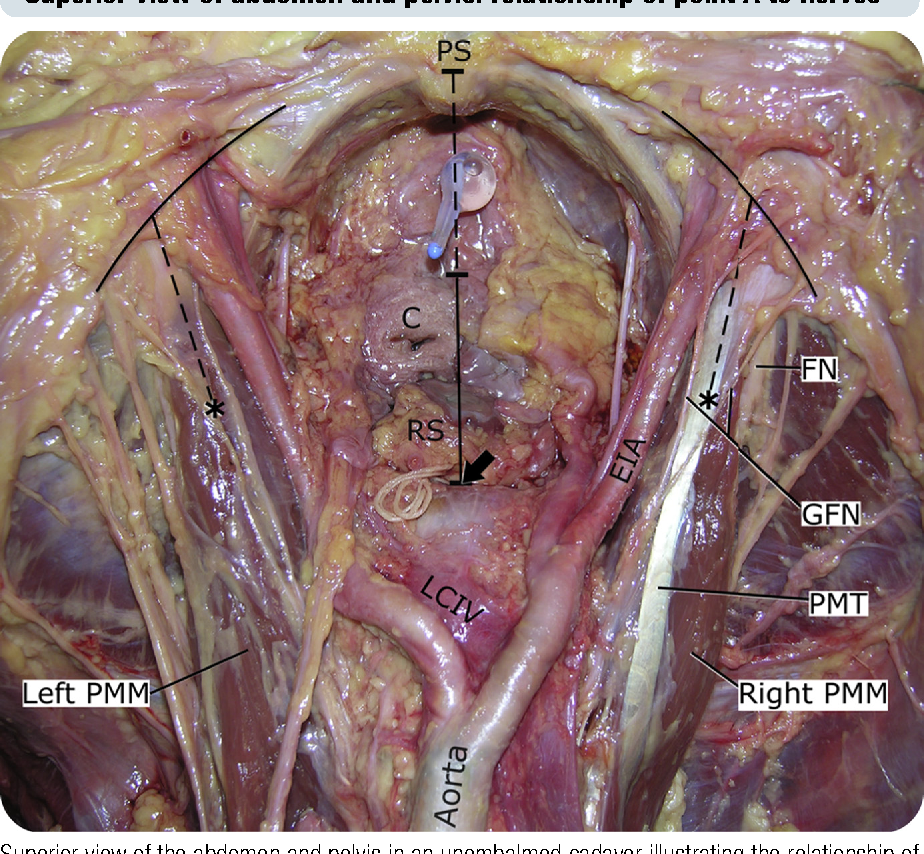 Anatomic Relationships Of Psoas Muscle Clinical Applications To