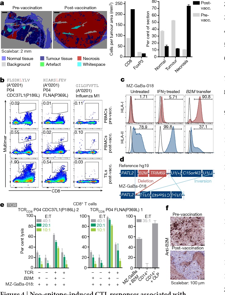 Figure 4 | Neo-epitope-induced CTL responses associated with immune escape by outgrowth of B2M-deficient melanoma cells in P04. a, Composition of metastases by computerized visualization and imageanalysis-based quantification (right, mean + s.d. of triplicates). b, Frequency of CD8+ T cells against two neo-epitopes in blood and TILs of a post-vaccination lesion detected by HLA multimers. Control, influenza M1 (A* 0201). c, HLA surface expression of MZ-GaBa-018 under different conditions. d, Genomic mapping of the deletion and inversion event leading to B2M loss. e, Specific lysis of P04-derived target cells by neo-epitope TCR-transfected CD8+ T cells measured by luciferase cytotoxicity assay. Controls: MZ-GaBa-018 cells without B2M transfer, CD8+ T cells without TCR RNA (left and middle); autologous CD14+ cells ± FLNA-P369L OLP (right). Results of triplicates (mean + s.d.). f, B2M staining of melanoma cells in pre- and post-vaccination metastases.