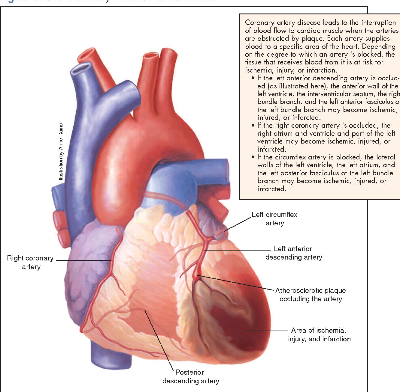Table 2 from Acute coronary syndrome. - Semantic Scholar
