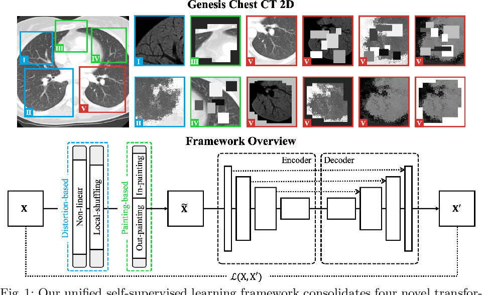 Figure 2 for Models Genesis: Generic Autodidactic Models for 3D Medical Image Analysis