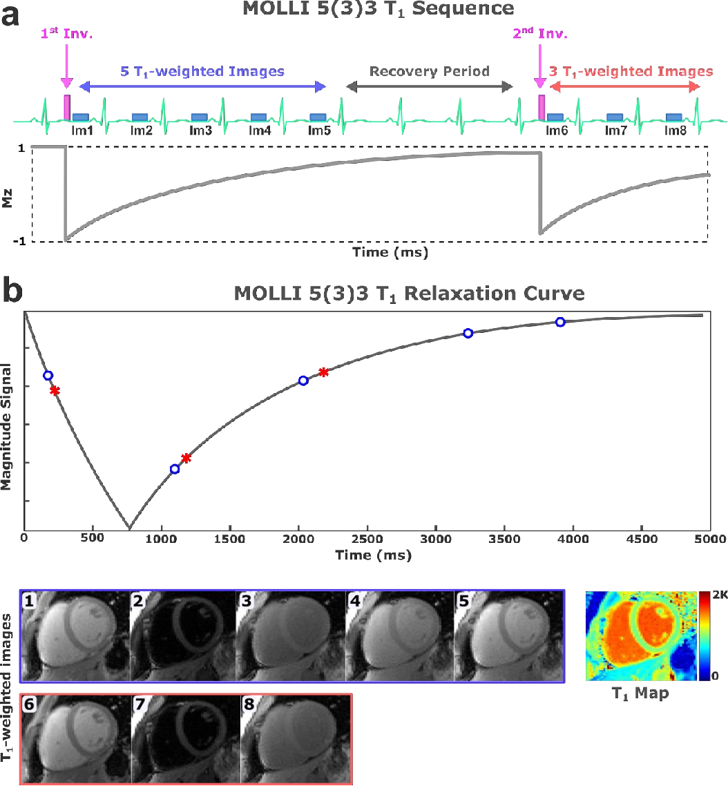 Figure 1 for $\textbf{MyoMapNet}$: Accelerated Modified Look-Locker Inversion Recovery Myocardial T1 Mapping via Neural Networks