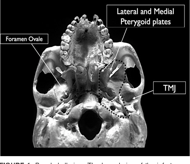 Endonasal Transpterygoid Approach To The Infratemporal Fossa