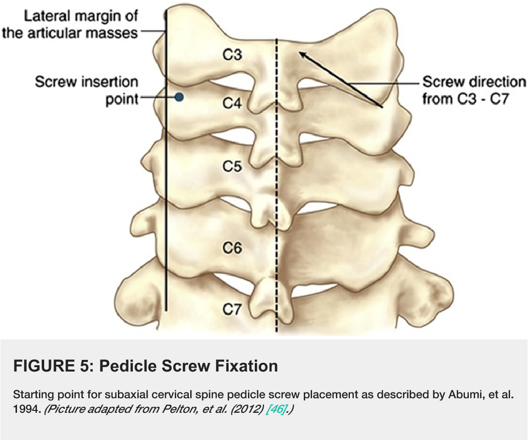 Posterior Fixation Techniques In The Subaxial Cervical Spine