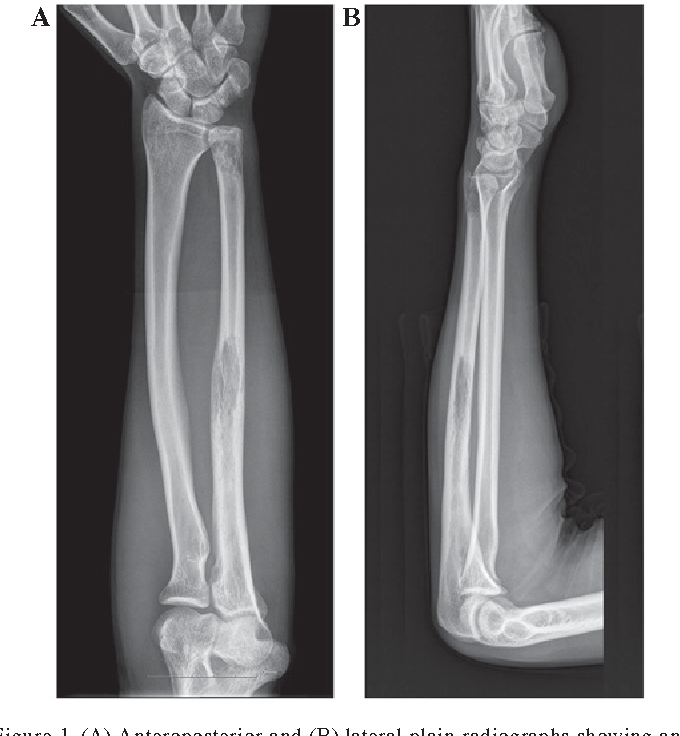 Figure 1 From Ewings Sarcoma Of The Ulna Treated With Sub Total