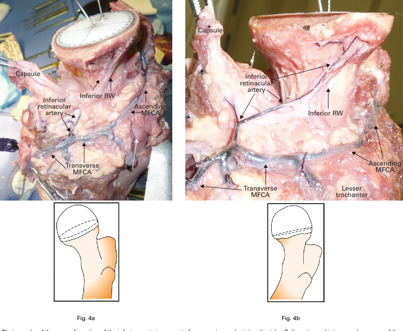 The terminal branches of the medial femoral circumflex artery: the ...
