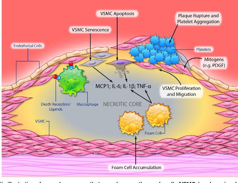 Figure 2 From Vascular Smooth Muscle Cells In Atherosclerosis