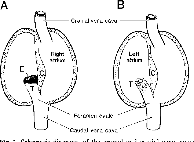Comparative Anatomy Of The Foramen Ovale In The Suina Semantic Scholar