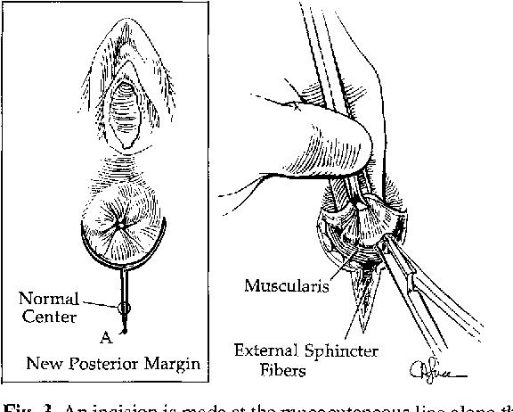 Anterior displaced anus