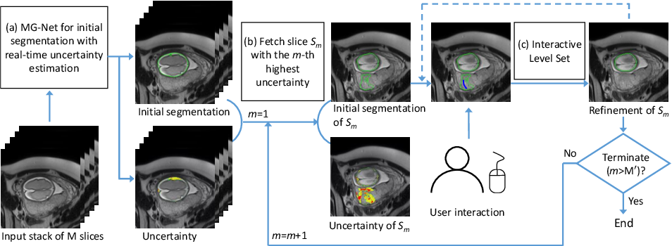 Figure 1 for Uncertainty-Guided Efficient Interactive Refinement of Fetal Brain Segmentation from Stacks of MRI Slices