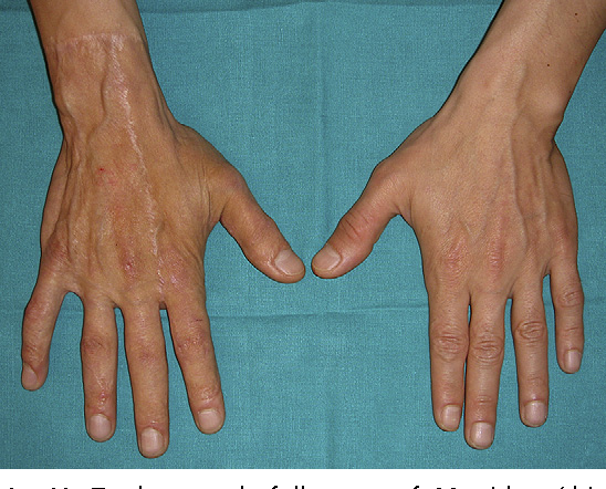 Figure 28 from The use of skin substitutes in hand burns  - Semantic