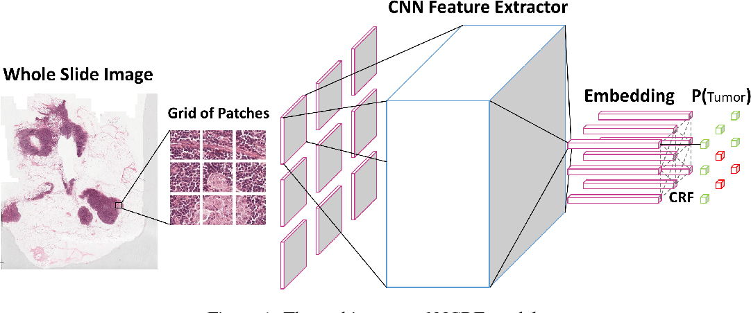 Figure 1 for Cancer Metastasis Detection With Neural Conditional Random Field