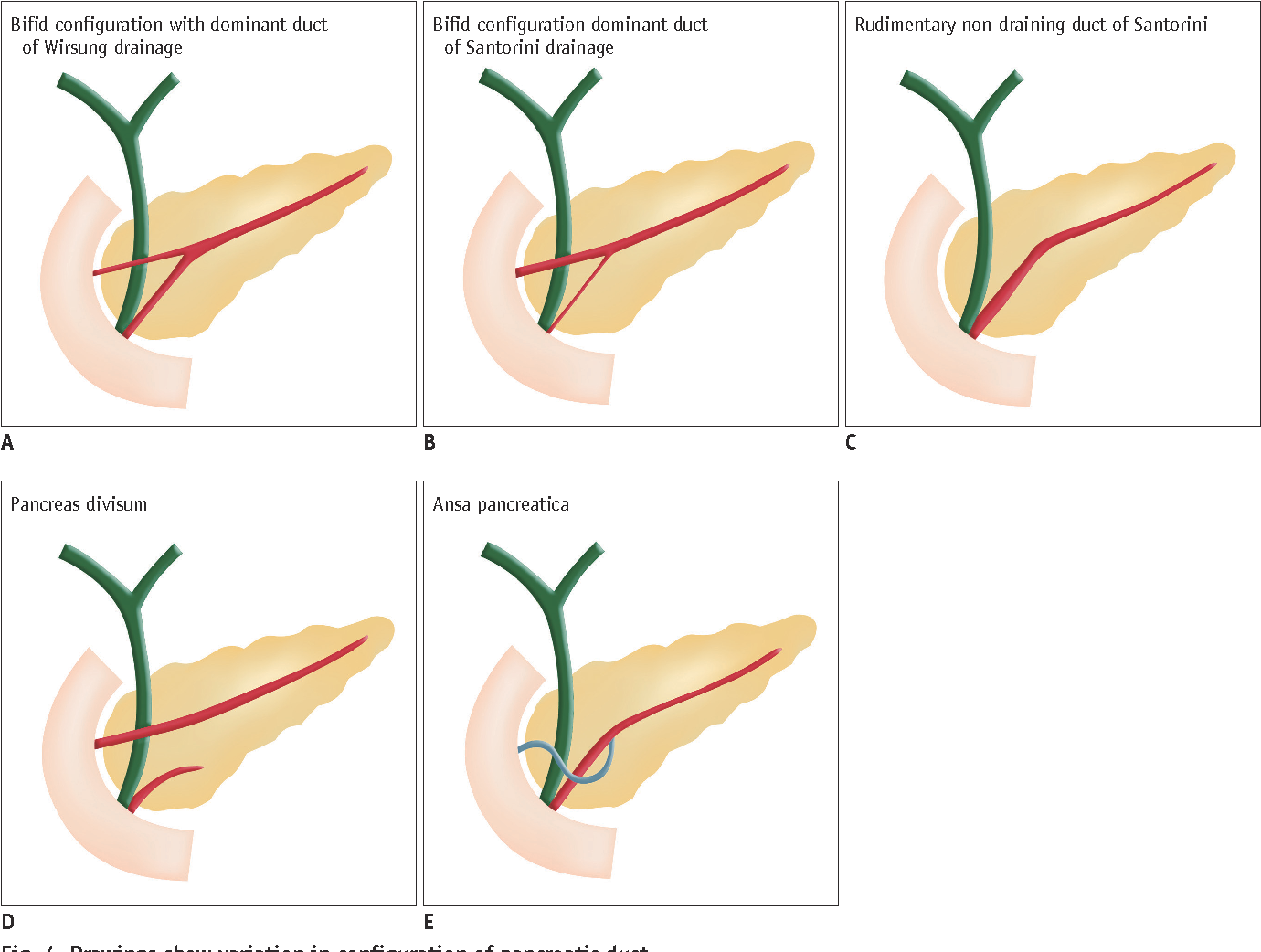 Duct Congenital Variants And Anomalies Of The Pancreas And