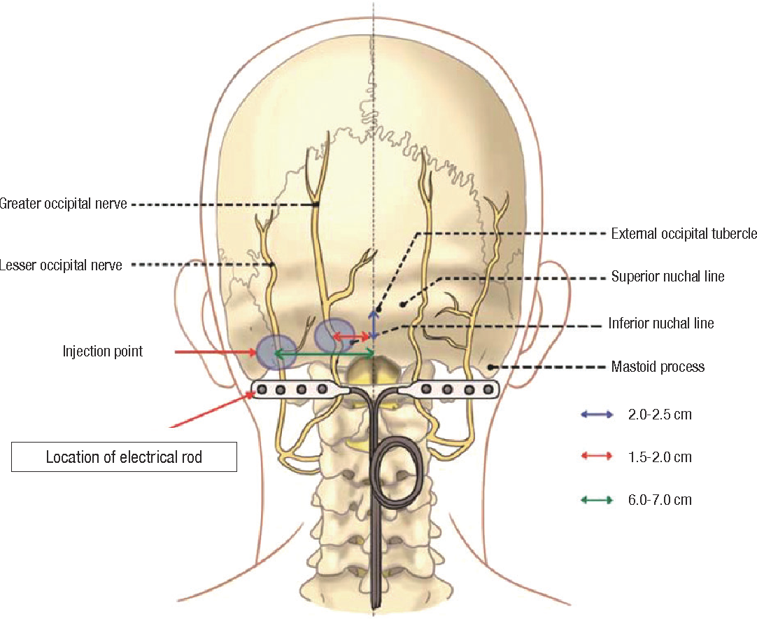 Figure 3 from Neuralgias of the Head: Occipital Neuralgia ...