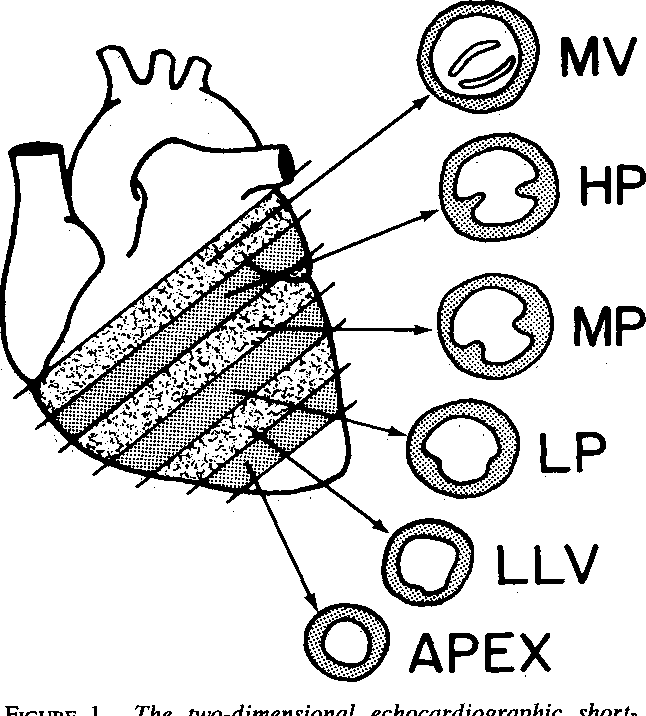 Figure 1 From Quantitation Of Regional Cardiac Function By Two