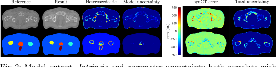 Figure 3 for Uncertainty in multitask learning: joint representations for probabilistic MR-only radiotherapy planning
