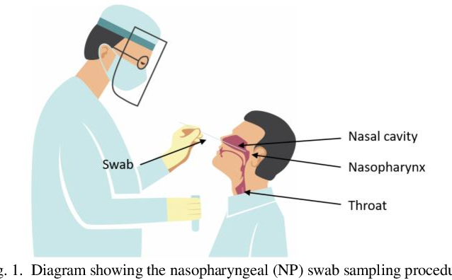 Figure 1 for Design of a Low-cost Miniature Robot to Assist the COVID-19 Nasopharyngeal Swab Sampling