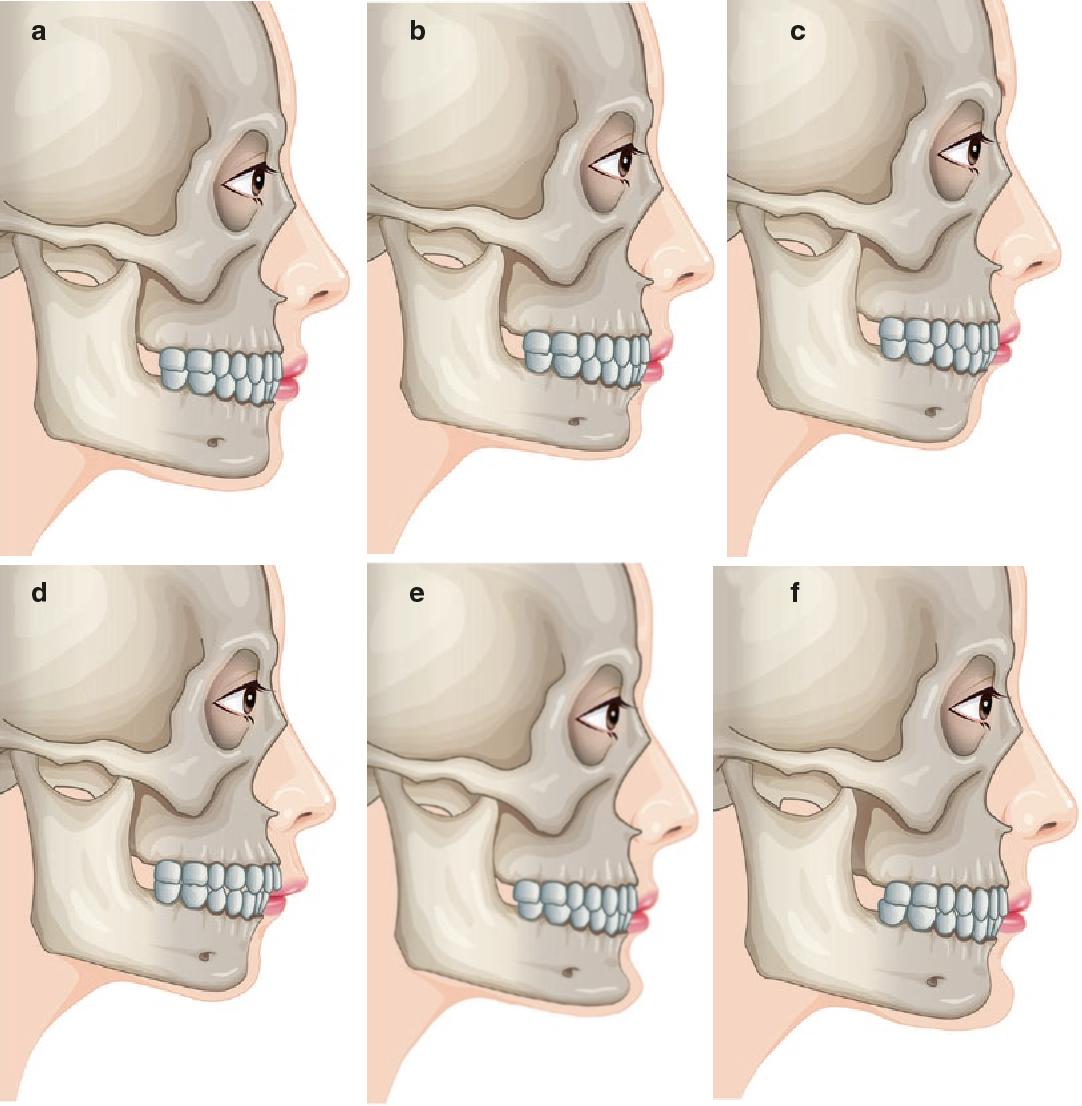 Figure 8 1 from Facial Bone Contouring Surgery - Semantic Scholar