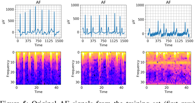 Figure 4 for The Effect of Data Augmentation on Classification of Atrial Fibrillation in Short Single-Lead ECG Signals Using Deep Neural Networks