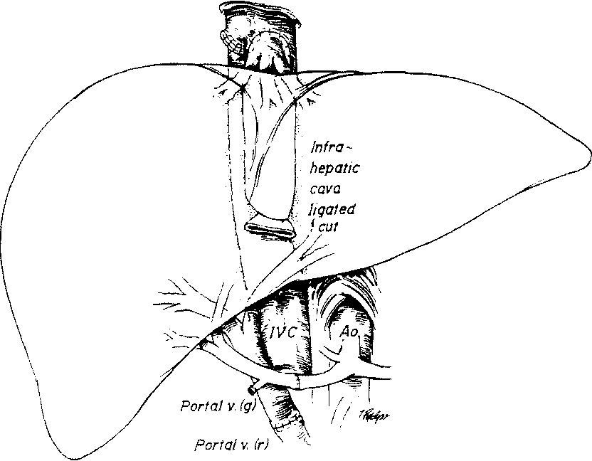 Figure 1 17 From 1 History O F Liver And Other Splanchnic Organ