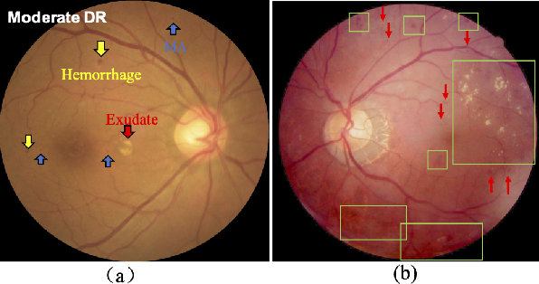 Figure 1 for Robust Collaborative Learning of Patch-level and Image-level Annotations for Diabetic Retinopathy Grading from Fundus Image