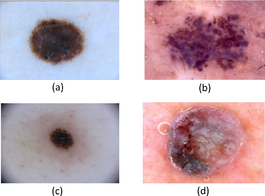 Figure 1 for CancerNet-SCa: Tailored Deep Neural Network Designs for Detection of Skin Cancer from Dermoscopy Images