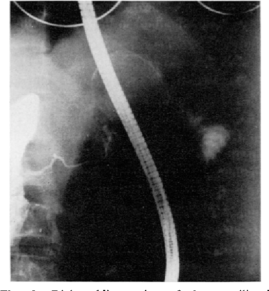 Fig. 1. Right oblique view of she curvilinealy calcified ~hadow. The pancreatic duct shown by endoscopic retrograde pancreatography appears normal and is not communicated with calcified tumor,