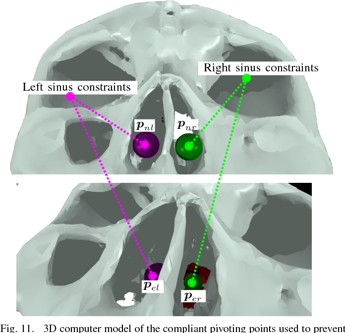 Figure 3 for Dynamic Active Constraints for Surgical Robots using Vector Field Inequalities