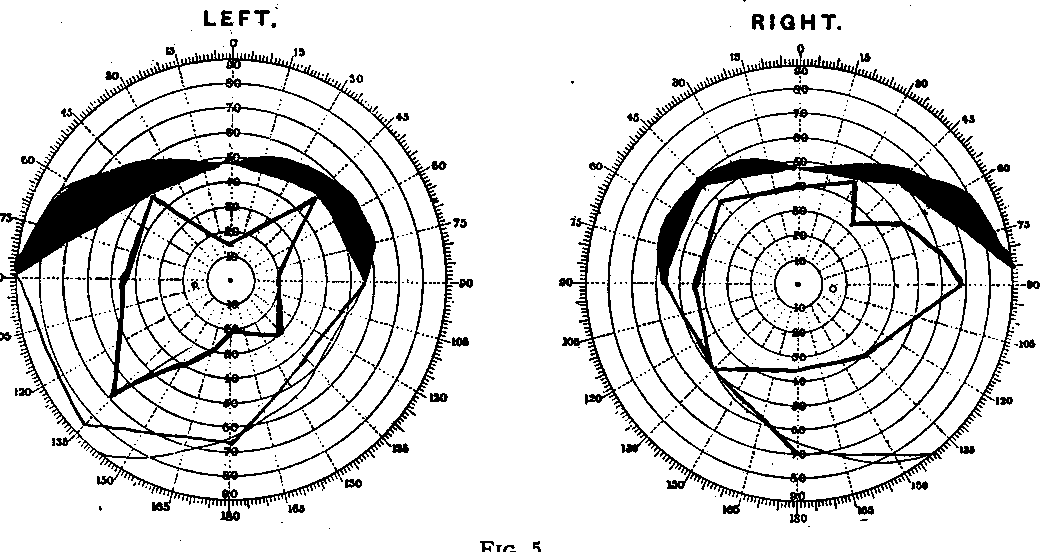 Figure 5 from THE BRITISH JOURNAL OF OPHTHALMOLOGY The