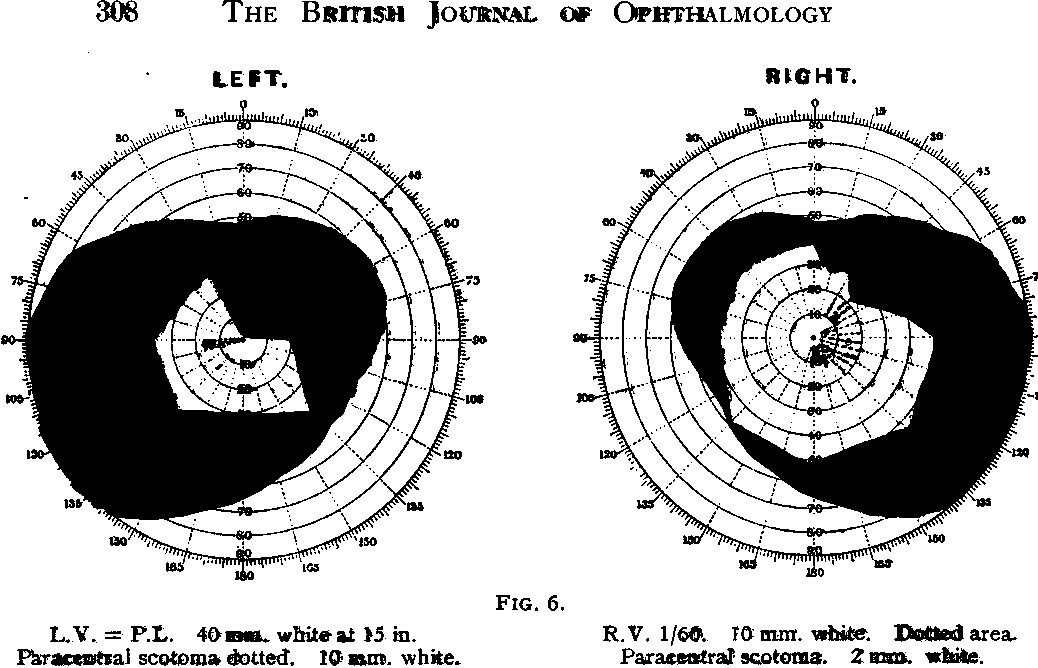 Figure 6 from THE BRITISH JOURNAL OF OPHTHALMOLOGY The