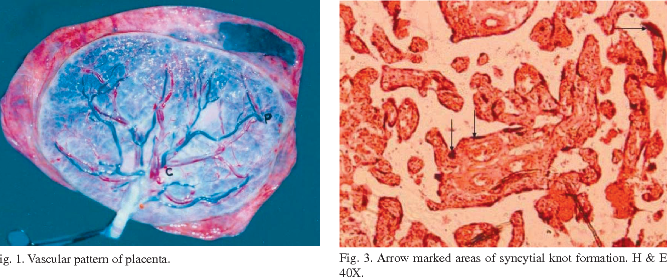 Cellular Changes in the Placenta in Pregnancies Complicated with ...
