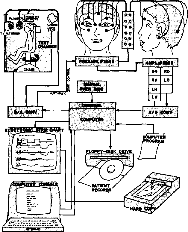 Figure 2 From Computerized Electro Neuro Ophthalmograph Cenog