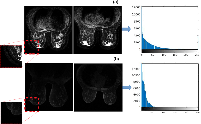 Figure 1 for Normalization of breast MRIs using Cycle-Consistent Generative Adversarial Networks