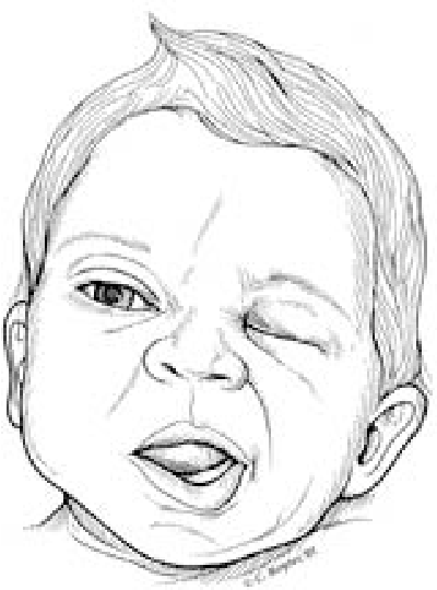Figure 3 From The Newborn Examination Part I Emergencies And