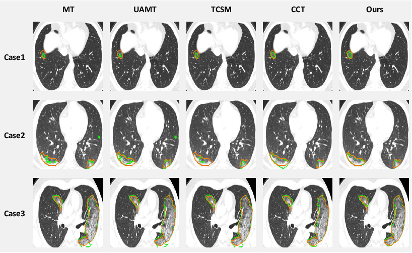 Figure 4 for Dual-Consistency Semi-Supervised Learning with Uncertainty Quantification for COVID-19 Lesion Segmentation from CT Images