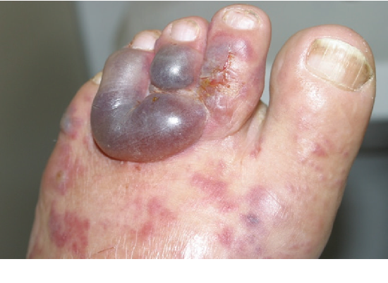 Full Text:Hyperinfection by Strongyloides Stercoralis