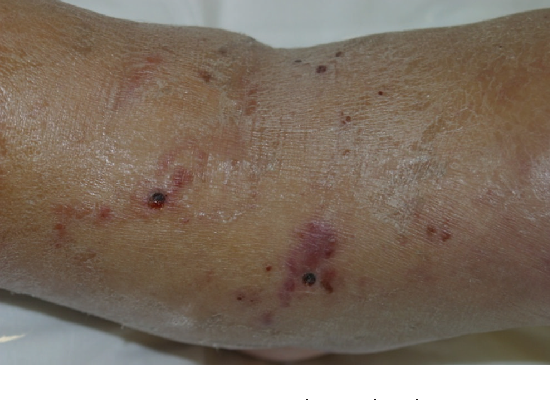 Case Report: Strongyloides stercoralis Hyperinfection in a ...