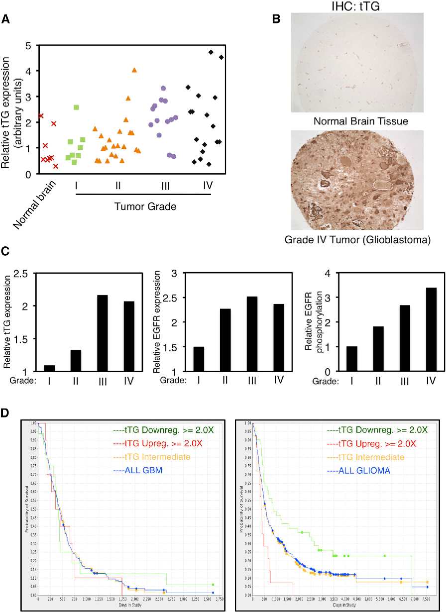 Figure 1. tTG Expression Is Upregulated in High-Grade Human Brain Tumors and Correlates with Poor Patient Outcomes