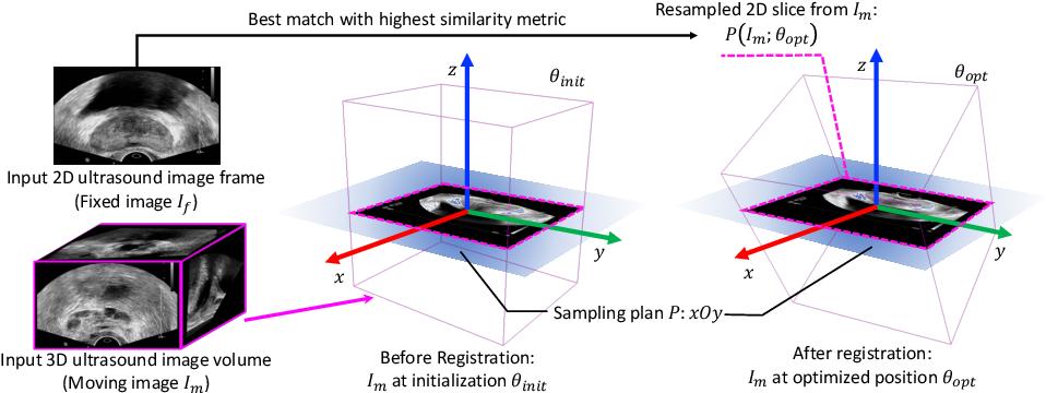 Figure 1 for End-to-end Ultrasound Frame to Volume Registration