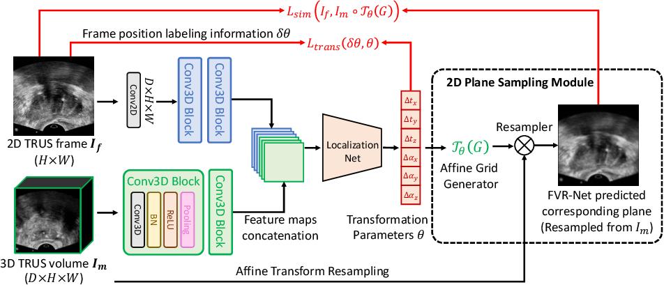 Figure 3 for End-to-end Ultrasound Frame to Volume Registration