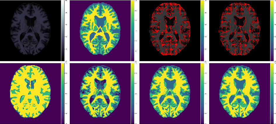 Figure 3 for A cross-center smoothness prior for variational Bayesian brain tissue segmentation