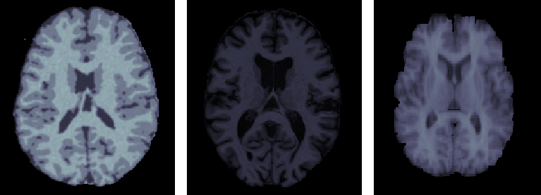 Figure 1 for A cross-center smoothness prior for variational Bayesian brain tissue segmentation