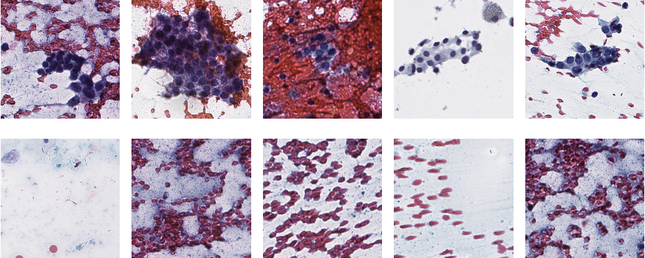 Figure 3 for A Deep-Learning Algorithm for Thyroid Malignancy Prediction From Whole Slide Cytopathology Images