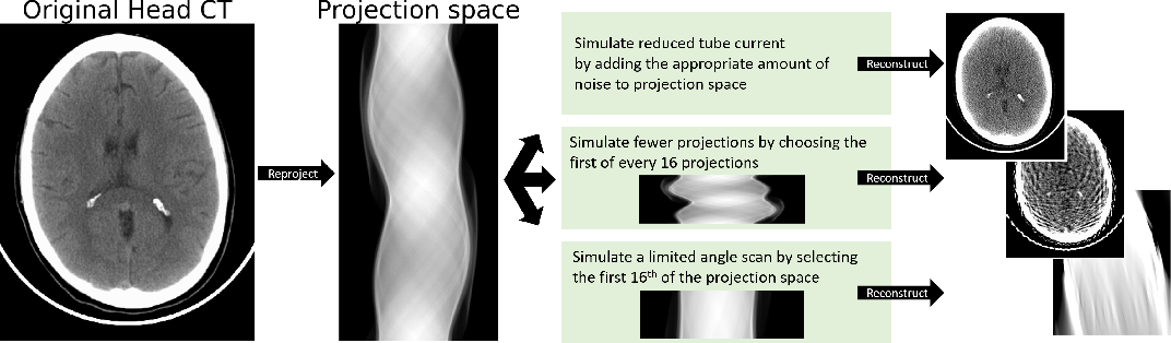 Figure 2 for Assessing Robustness to Noise: Low-Cost Head CT Triage
