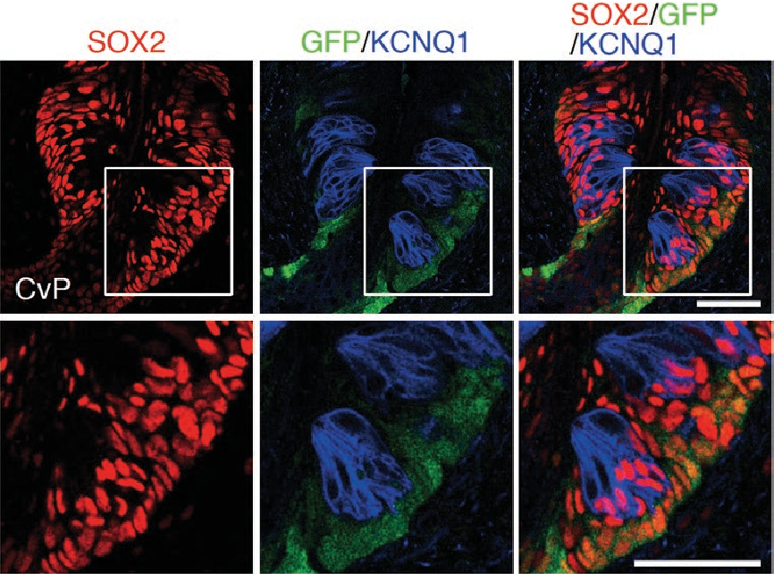 Figure 4. Relationship between Lgr5+ taste stem cells and SOX2+ cells in the circumvallate papillae. Triple fluorescence labeling of SOX2 (red), green fluorescent protein (GFP; green), and KCNQ1 (blue) in the CvP of Lgr5EGFP-ires-CreERT2/+ mice. All GFP+ cells are observed outside taste buds and colabeled with SOX2. Areas of magnified fluorescent images (bottom) are indicated by white squares. Scale bar: 50 µm.