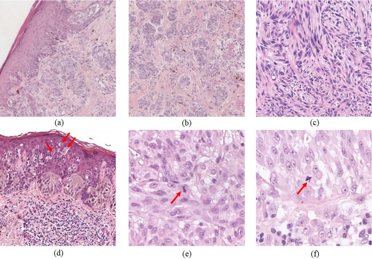 Figure 1 for An Attention-based Weakly Supervised framework for Spitzoid Melanocytic Lesion Diagnosis in WSI