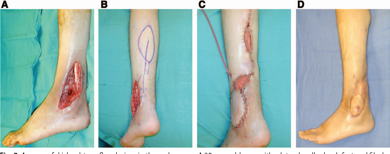 The Reverse Superficial Sural Artery Flap Revisited for Complex ...