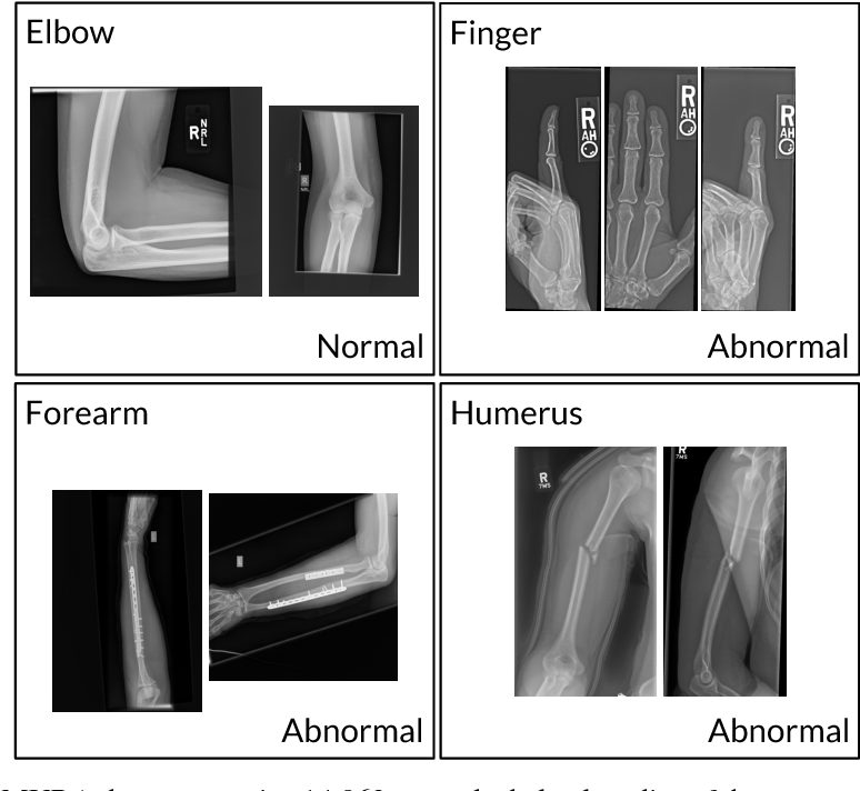Figure 1 for MURA: Large Dataset for Abnormality Detection in Musculoskeletal Radiographs