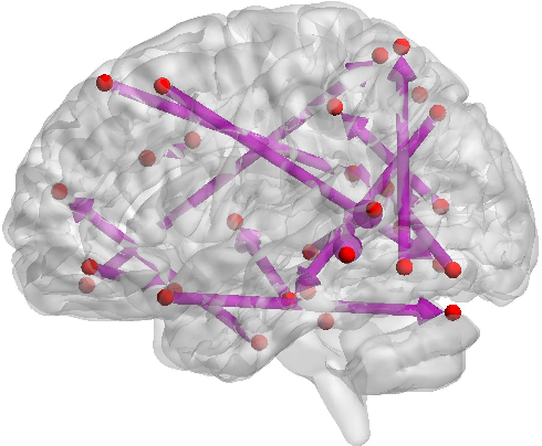 Figure 4 for Causal inference of brain connectivity from fMRI with $ψ$-Learning Incorporated Linear non-Gaussian Acyclic Model ($ψ$-LiNGAM)